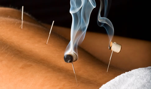 http://tcmgermann.ch/uploads/images/behandlungen_moxibustion.jpg